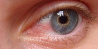 Lenti a contatto e ambienti riscaldati. I rimedi contro la secchezza oculare