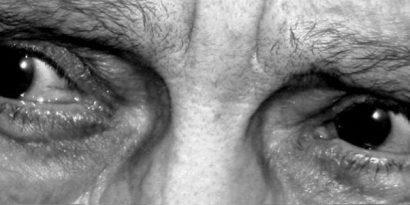 La cataratta senile: cause, prevenzione e cure