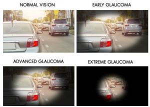 stadi del glaucoma