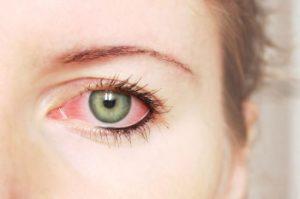 retinopatia diabetica sintomi